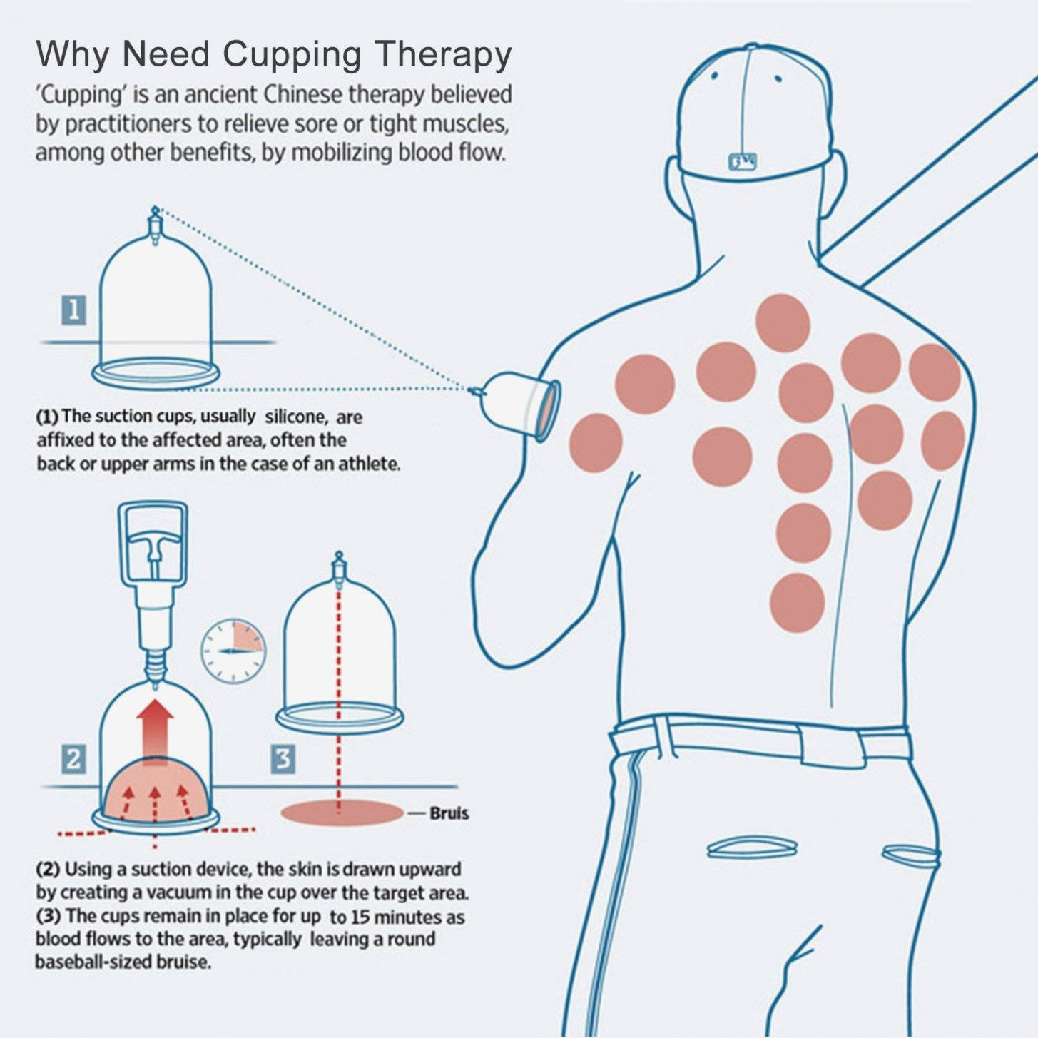Cupping points chart pdf 2019 in 2020 with images