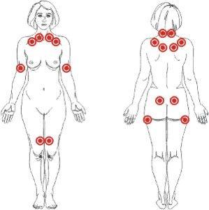 Tudo sobre Fibromialgia | Reumatologia Avançada