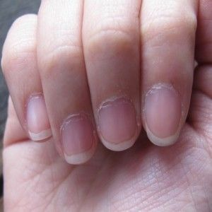 Dried And Cracked Cuticles Can Affect The Health Of Your Nails And