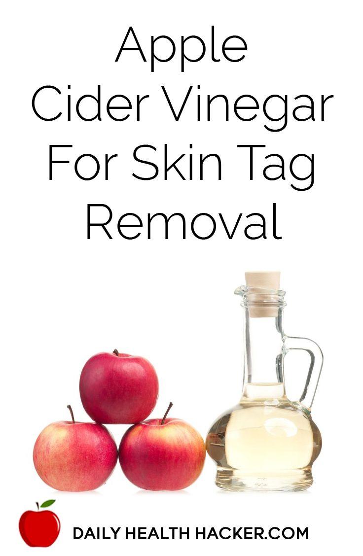 Apple cider vinegar for skin tag removal with images