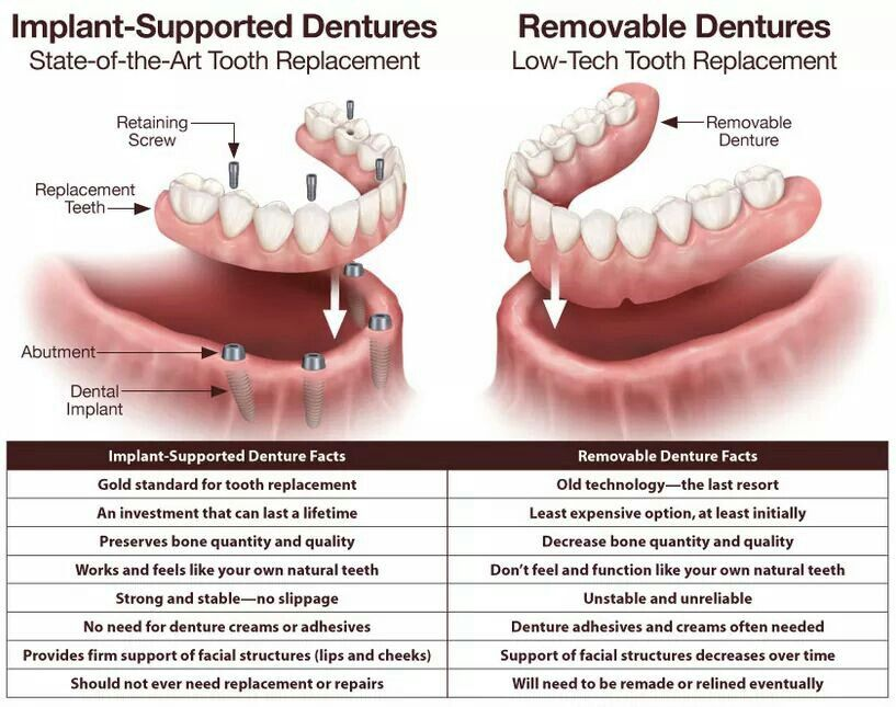 Dentures implant dentistry dental implants cost tooth