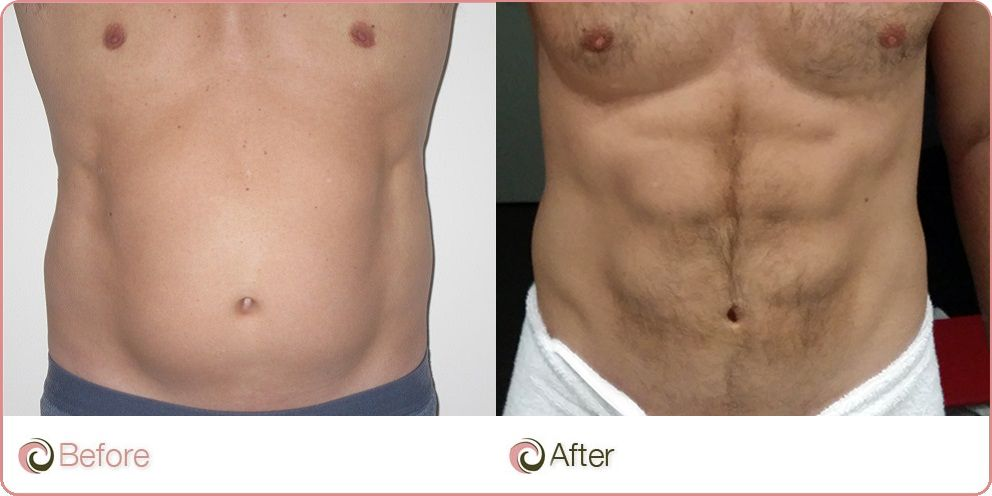 plastic surgery and ultrasound assisted liposuction Liposuction is the surgical removal of excess fat that offers a better contour and   the tumescent technique the super-wet technique ultrasound-assisted.