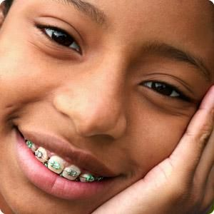 How to know if your child is ready for braces working mother dental braces solutioingenieria Gallery