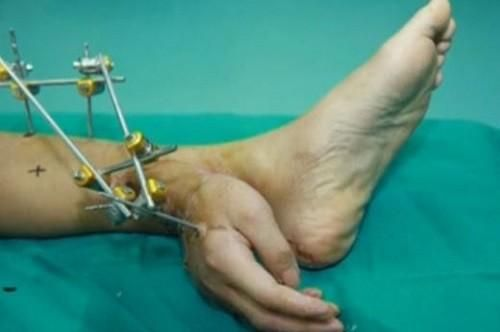 Man's Severed Hand Saved By Grafting It To His Ankle