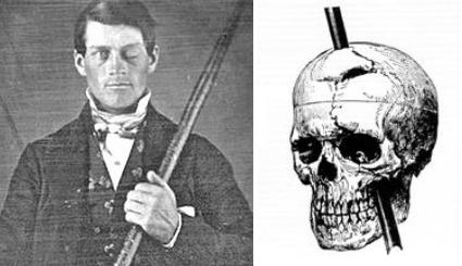 phineas gage case study pdf