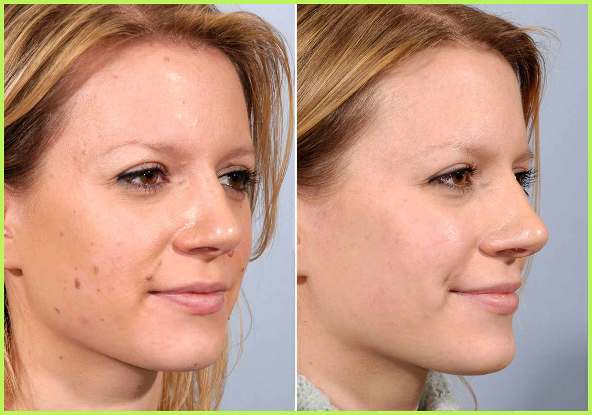 Skin Care Procedures Before After Photos Dallas Highland Park Tx Makeup Trends Skin Care Procedures Mole Removal Skin Care Treatments