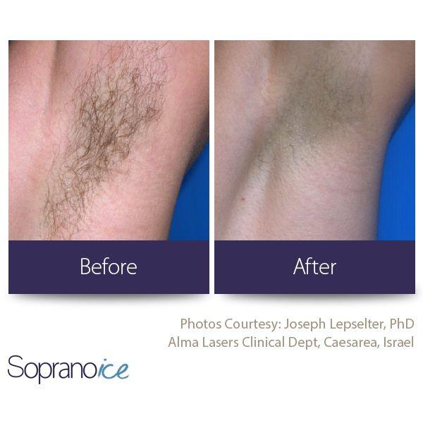 Soprano Ice Soprano Ice Laser Laser Hair Removal Ipl Hair Removal