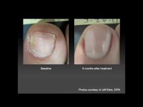 How To Cure Nail Fungus With Vinegar In Under 3 Minutes? - Treat ...
