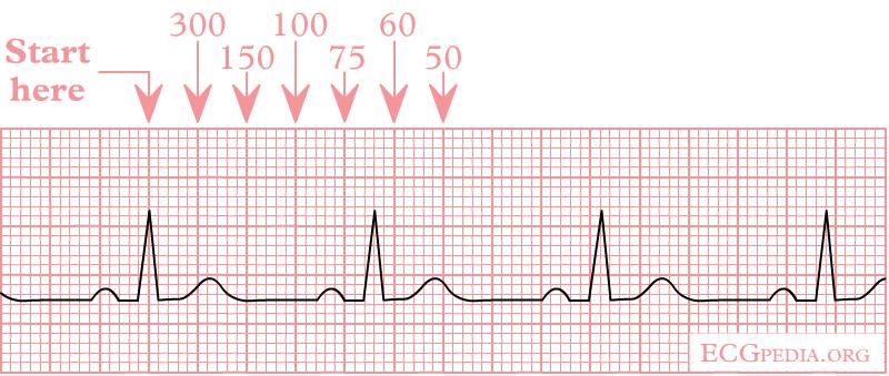 Determine heart rate on rhythm strip