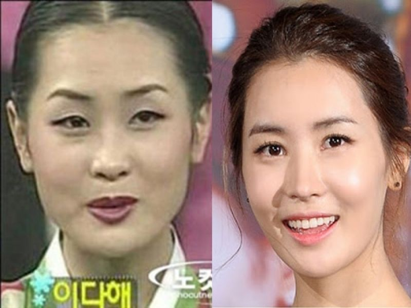 Korean before and after plastic surgery pictures of celebrities