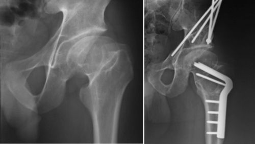 Perthes Disease Pre Op And Post Op Pao Surgery
