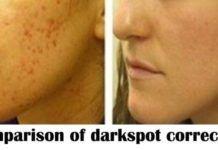 Comparison of Best Dark Spot Correctors in Market