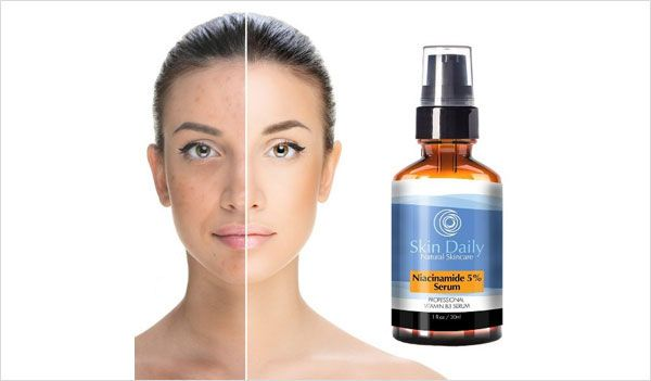 Niacinamide Vitamin B3 Serum By Skin Daily Skincare 56 Off Daily Skin Care Best Anti Aging Serum Skin Care