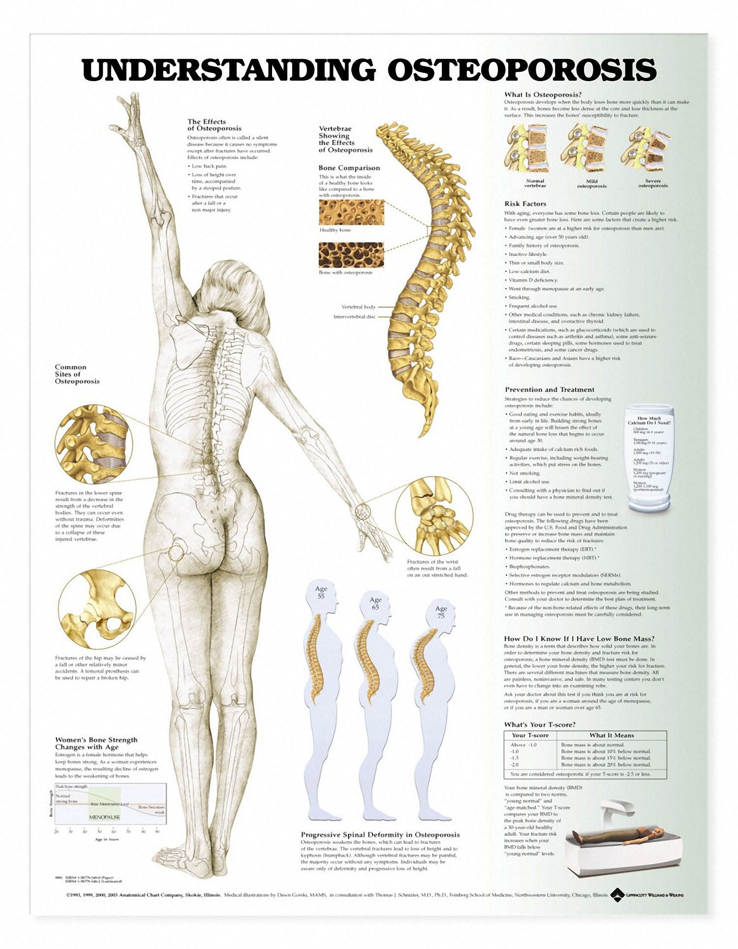 Calcium and Vitamin D Combination to Reduce Osteoporosis Risk ...