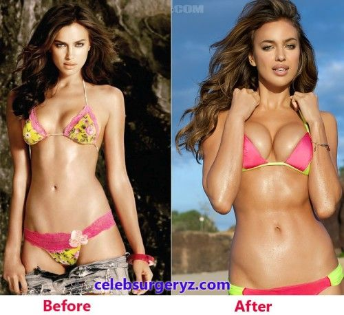 E Breast Implants Before And After Irina Shayk before aft...