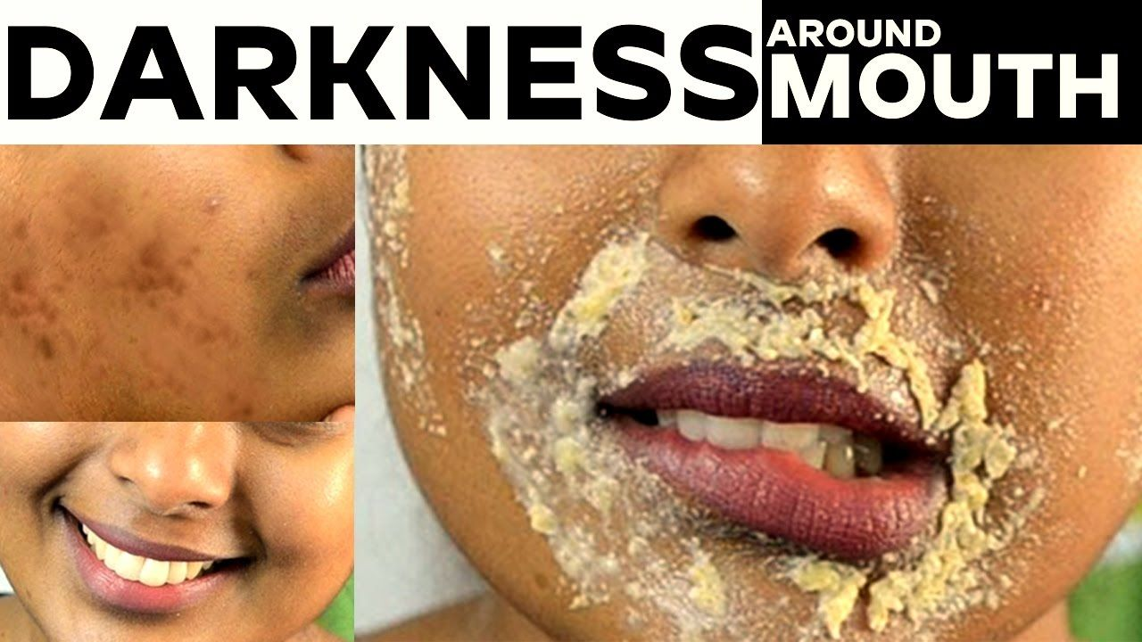 How To Get Rid Of Black Marks Around Mouth