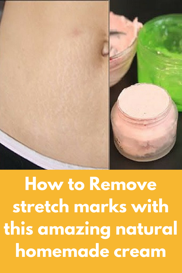How To Remove Stretch Marks With This Amazing Natural Homemade