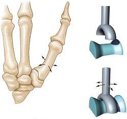condyloid joint (knuckle joint) : one type of synovial joint, Cephalic Vein
