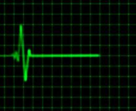 Animated Heart Rate Monitor Electrocardiogram The Heart Sounds Like A Timpani And Sounds Like That Because The Heart Rate Monitor Animated Heart Heart Rate