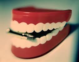 تلبيس الاسنان الهدف من تلبيس الاسنان هو انشاء بنية واقية للحفاظ على الاسنان التالفة نتيجة صدع كسر في بنية السن او الاسنان التي خضعت لع Food Desserts Cake