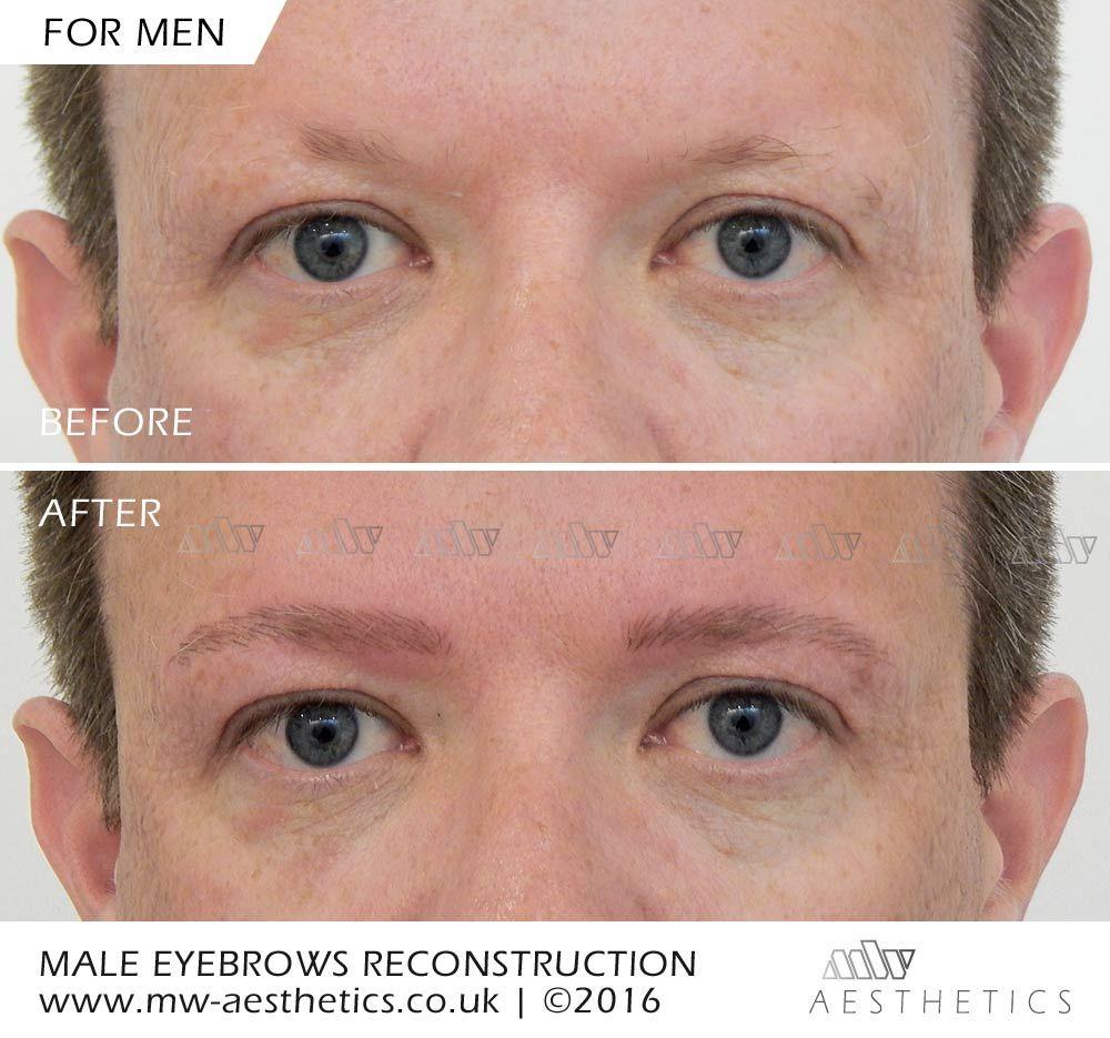 Semi Permanent Eyebrows For Alopecia Hair Loss At Mw Aesthetics We