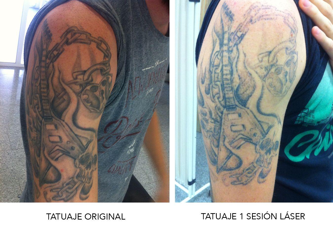 Kalinda Cano Tatuajes como borrar tatuajes caseros