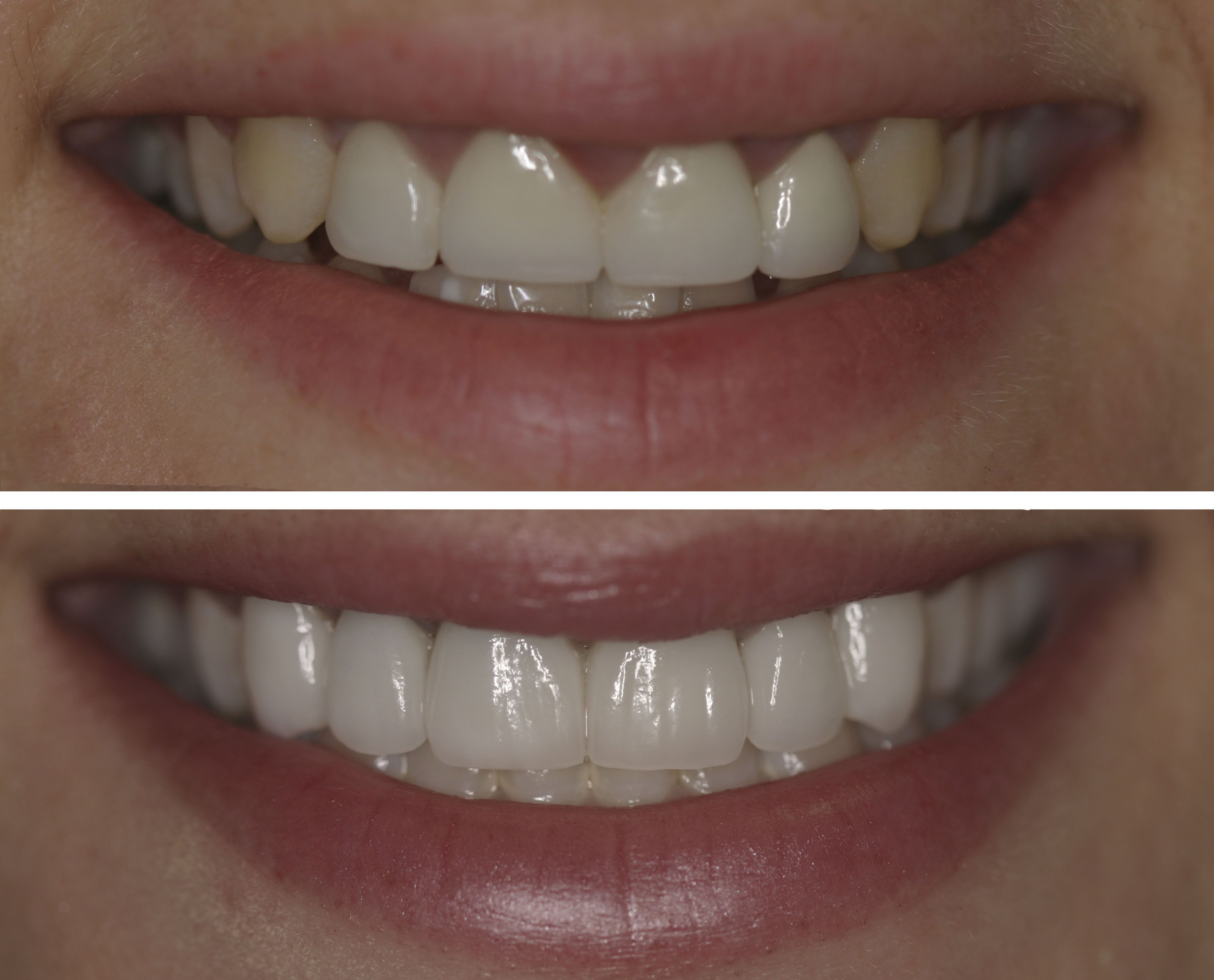 Before And After The Patient S Teeth Were Uneven And Her