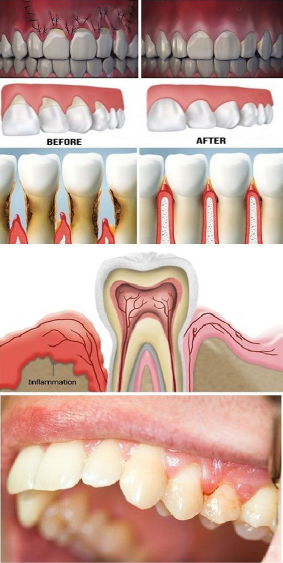 6 Natural Ways To Help Treat Uncomfortable Receding Gums Receding Gums Gum Disease Healthy Teeth
