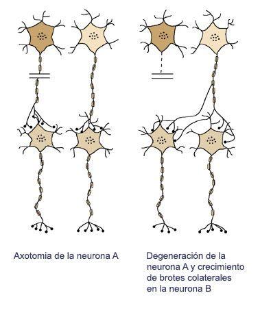 Plasticidad neuronal: degeneración y regeneración del tejido ...
