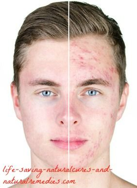 For acne cure natural adult