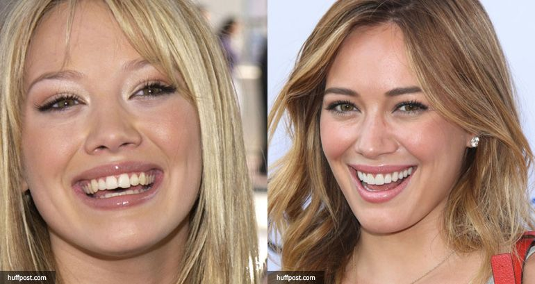Hilary Duff porcelain veneers