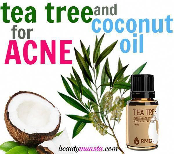 Tea Tree Oil and Coconut Oil for Acne - How to Use with 3 ...