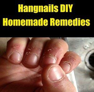 Hangnails DIY Homemade Remedies
