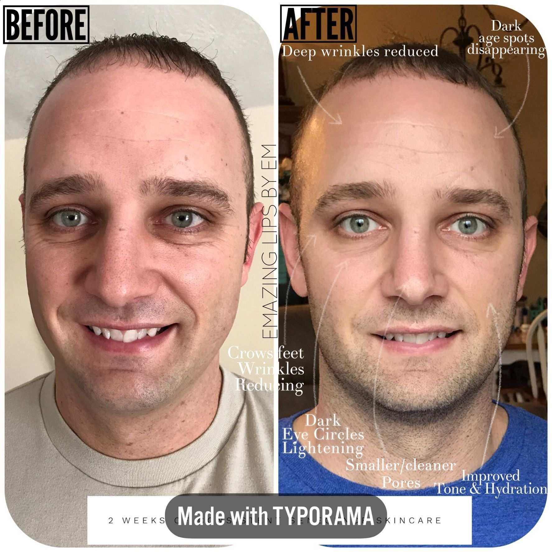 Before And After Senegence Skincare Skin Care This Before And