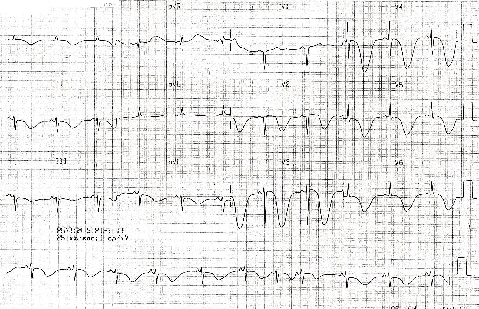 Quiz ECG 012 | ECG | Assessment, Pattern, The 100