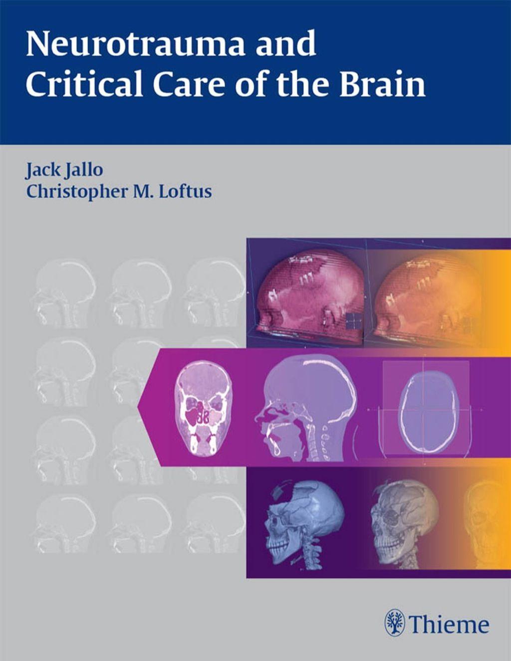 Neurotrauma and Critical Care of the Brain (eBook