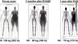 Dr j weight loss charleston wv image 4