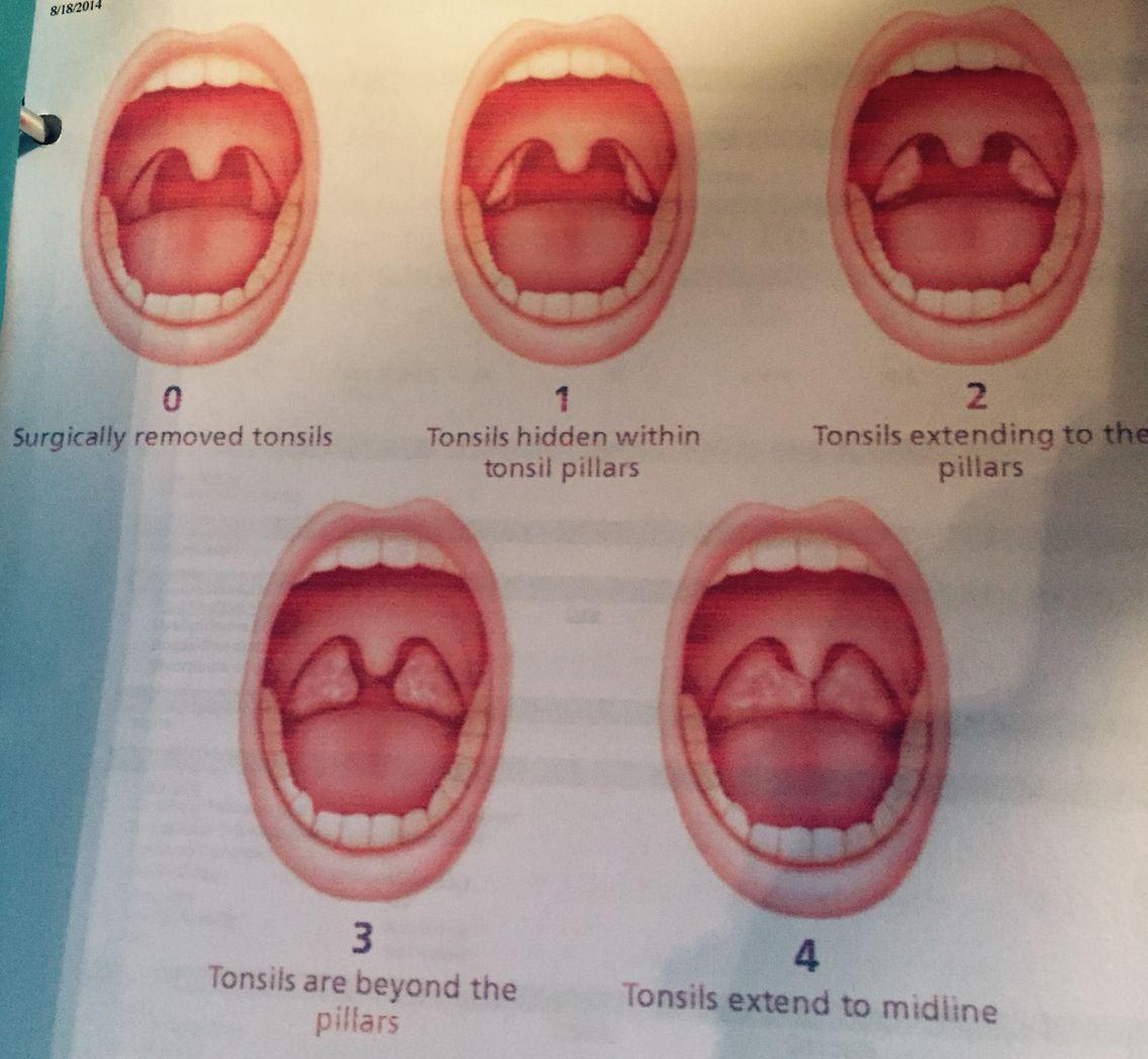 Tonsils   FNP helpfulls   Pinterest