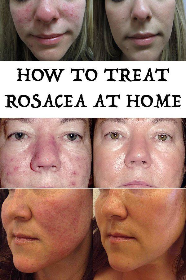 How To Get Rid Of Rosacea Naturally With Images Rosacea Acne