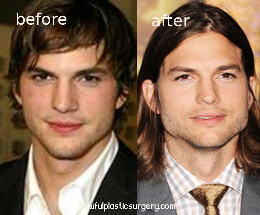 Ashton Kutcher jaw implants.  Why did he do that??