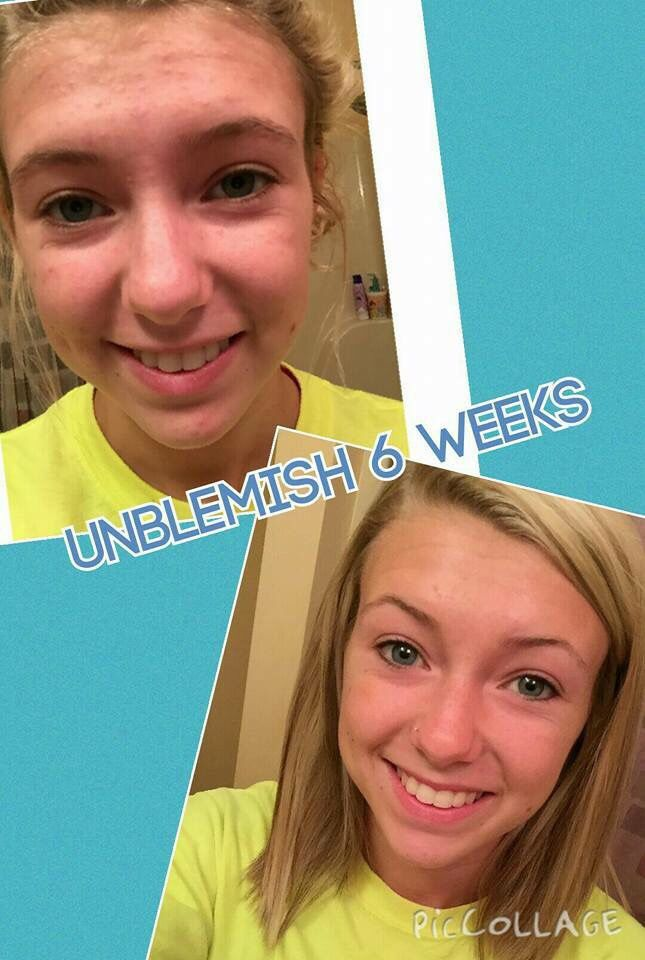 Unblemish is for anyone!