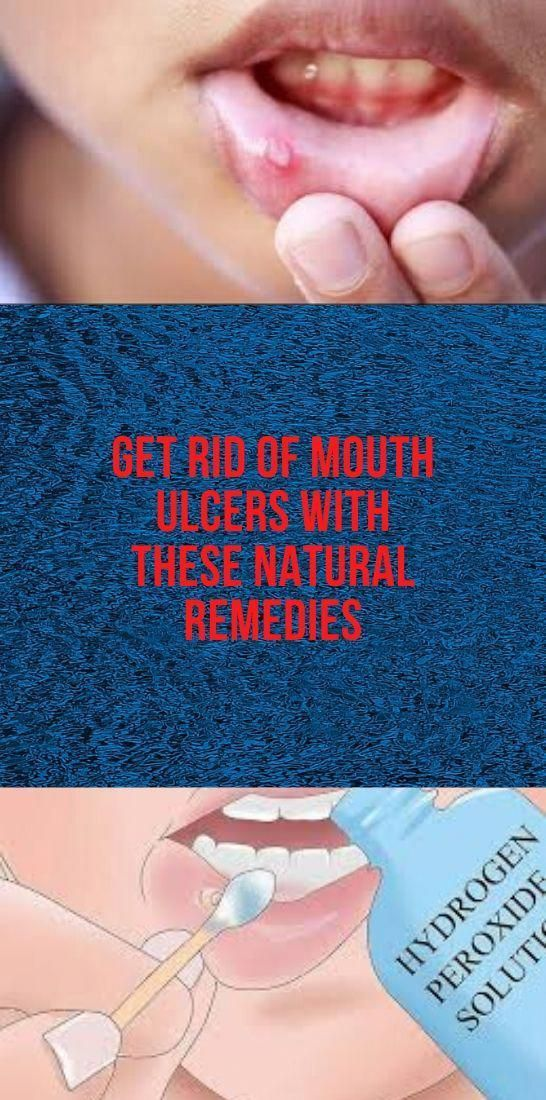 Zähne Get Rid Of Mouth Ulcers With These Natural Remedies