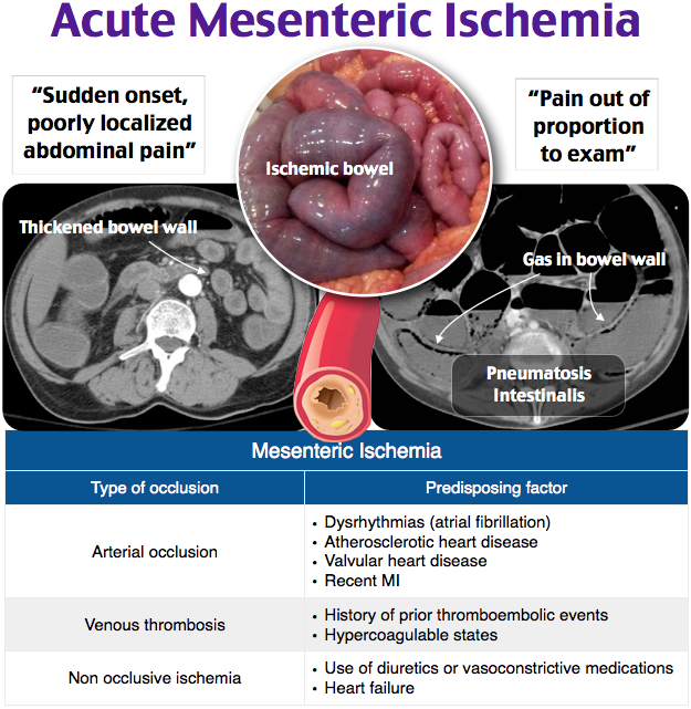 Acute Mesenteric Ischemia Medical symptoms