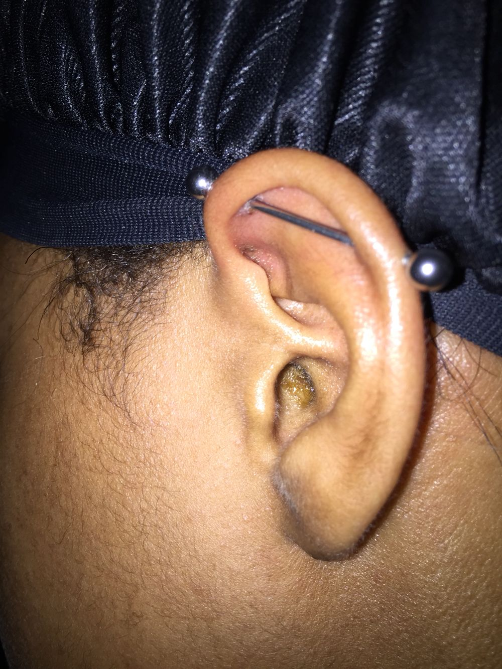 I Ve Had My Industrial Piercing For Around 2 Months Now It Seems