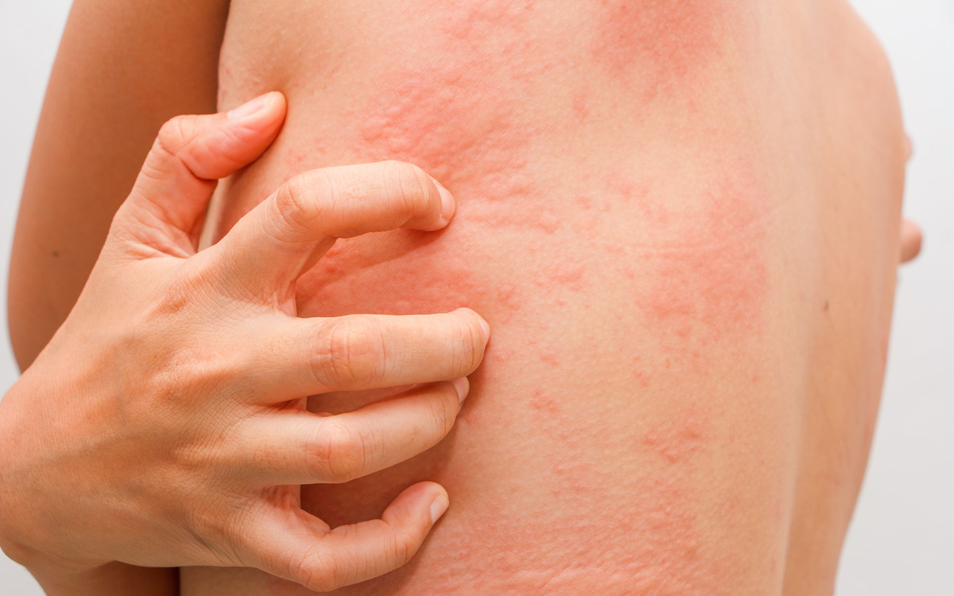 16 Signs You Have A Nutrient Deficiency Body Itches Skin Allergies