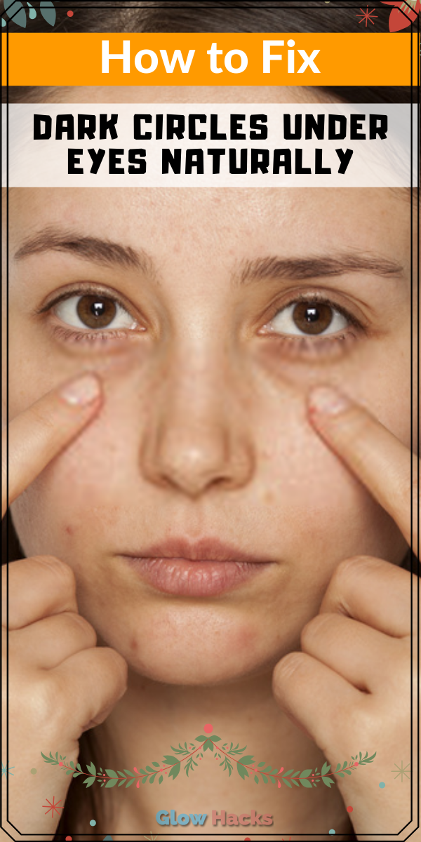 How to Fix Dark Circles Under Eyes Naturally - Glow Hakcs ...