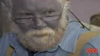 Argyria - why ingested silver turns skin blue