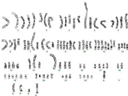 Karyotype from a breast cancer cell. Normal cells have 46
