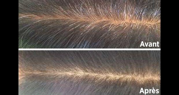 Pour Cacher Les Cheveux Blancs Le Cafe Est Une Alternative Saine