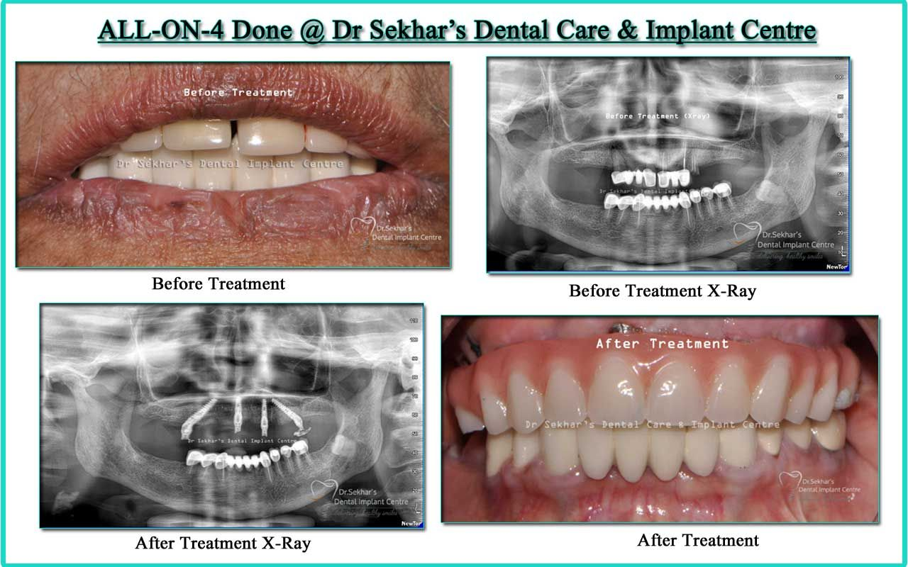 All On 4 Teeth In Day Done Dr Sekhar S Dental Care Implant Centre Implants Dental Care Dental